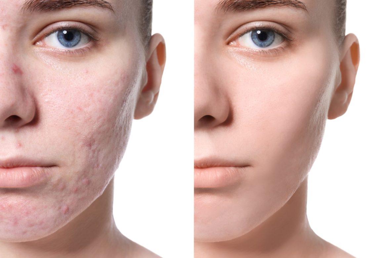 TRAITEMENT DES CICATRICES d'acnés et Cicatrices post-opératoires Clinique esthétique Paris
