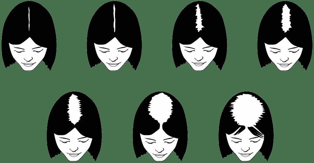 greffe de cheveux home et femme à la clinique Nuevaderm à deux pas des champs elysées Paris