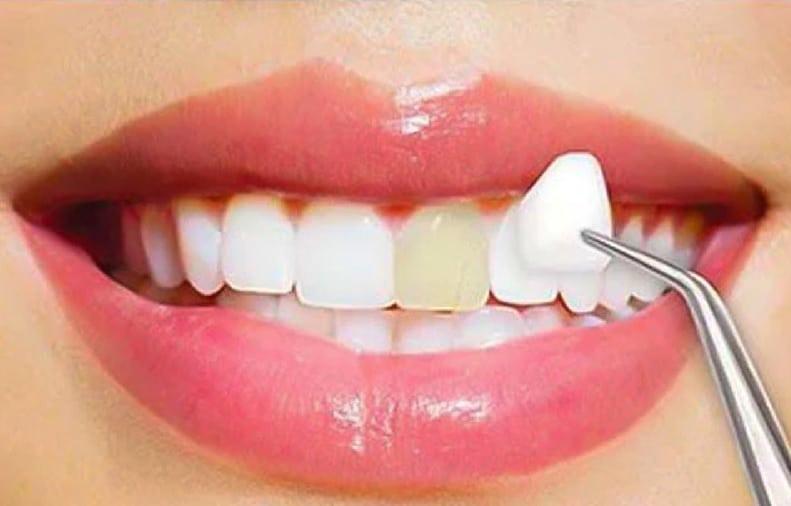 facettes dentaires paris nuevaderm
